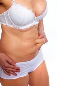 myaesthetics Kryolipolyse Bauchbehandlung